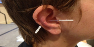 auricular_acupuncture